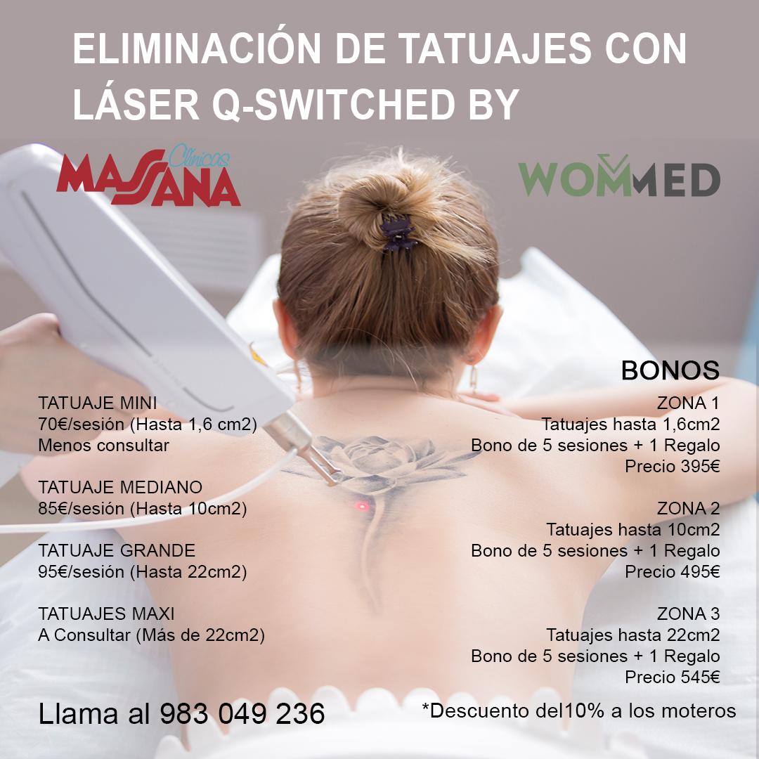 cartel-eliminacin-tatuajes-para-web